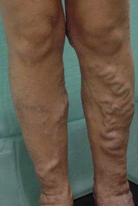Выпуклые вены на ногах