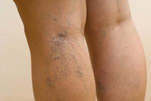 Синие вены на ногах