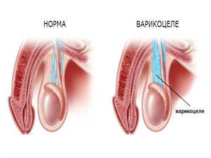Норма и варикоцеле