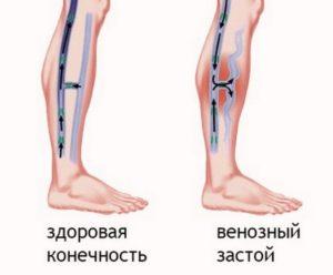 Застой крови в венах ног