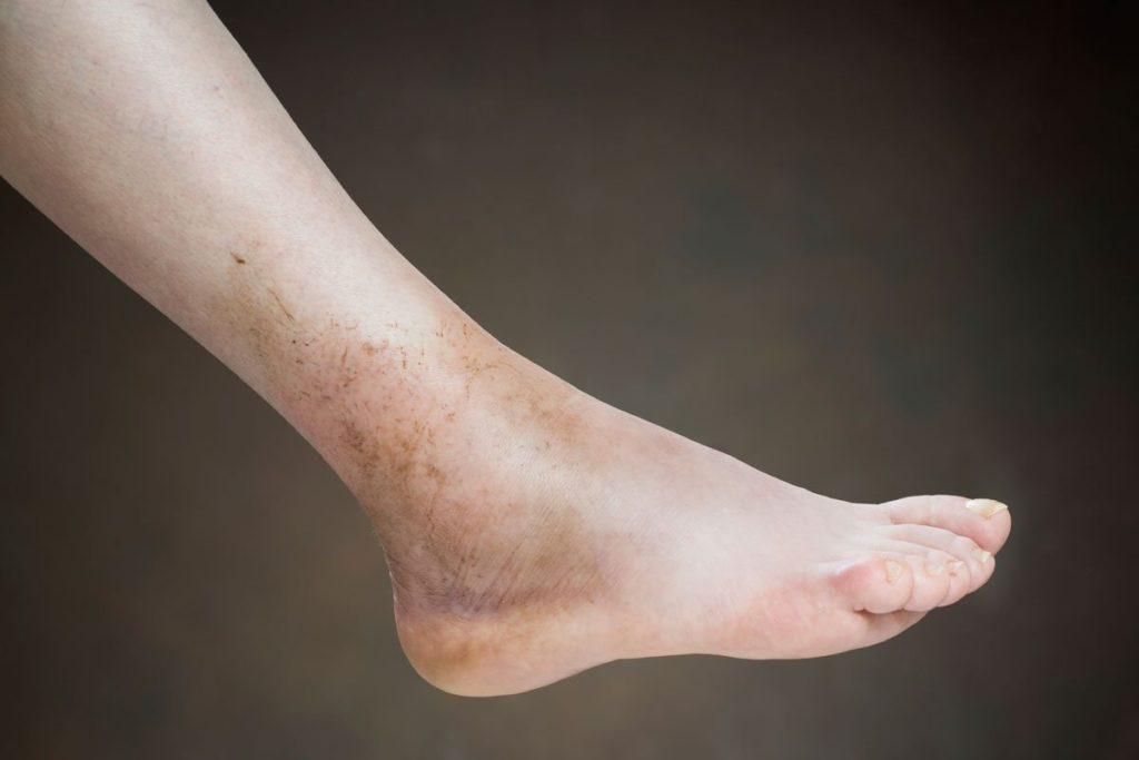 Пятно на ноге при варикозе