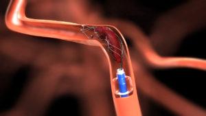 Эндоваскулярное удаление тромба