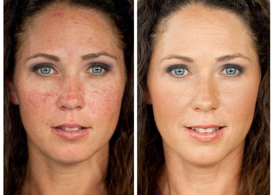 удаление капиляров на лице